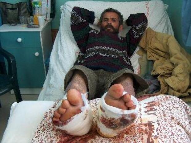 <p>[4623] 19  Razkallah al-Misri  in the hospital with broken feet following a beating by Border Police officers.</p><p>Photo credit: Iyad Hadad, B'Tselem</p>