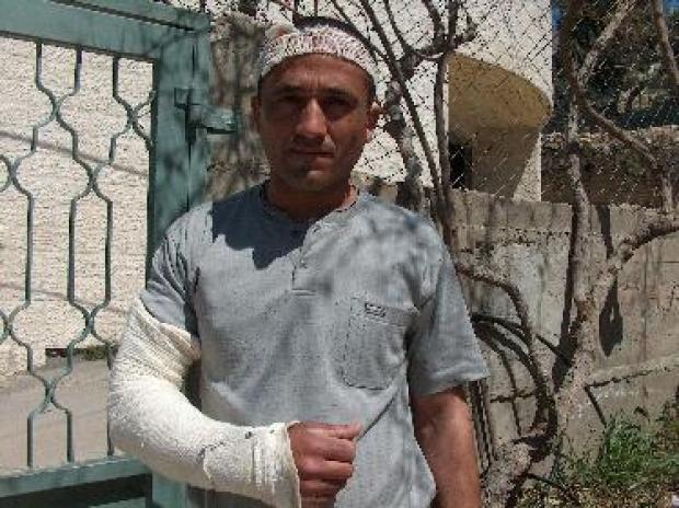 <p>[5368] 7  Palestinian from Yatta who was beaten by a Border Police officer at his work in Israel.</p><p>Photo credit: Musa Abu Hashhash, B'Tselem</p>