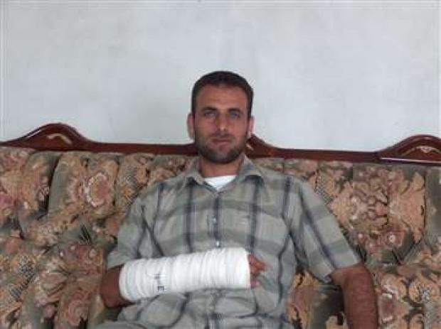 <p>[7842] 1  Naim Ishtiyeh, 34, from Sallem, Nablus District. On 10 July 2006, an Israeli soldier beat him with a stick near 'Asira a-Shamaliya, breaking his wrist.</p><p>Photo credit: Salma a-Dib'i, B'Tselem</p>