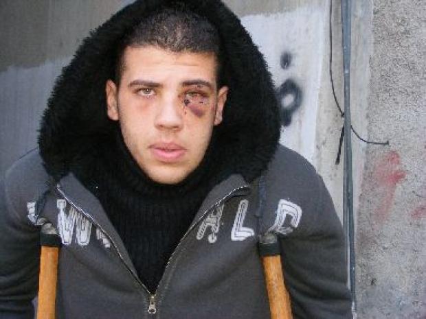 <p>[10289] 1  'Abdallah a-Rushdi. According to his testimony a policeman beat him, breaking his leg and injuring his eye, Shu'afat refugee camp, 28 December 2008. </p><p>Photo credit: Kareem Jubran, B'Tselem</p>