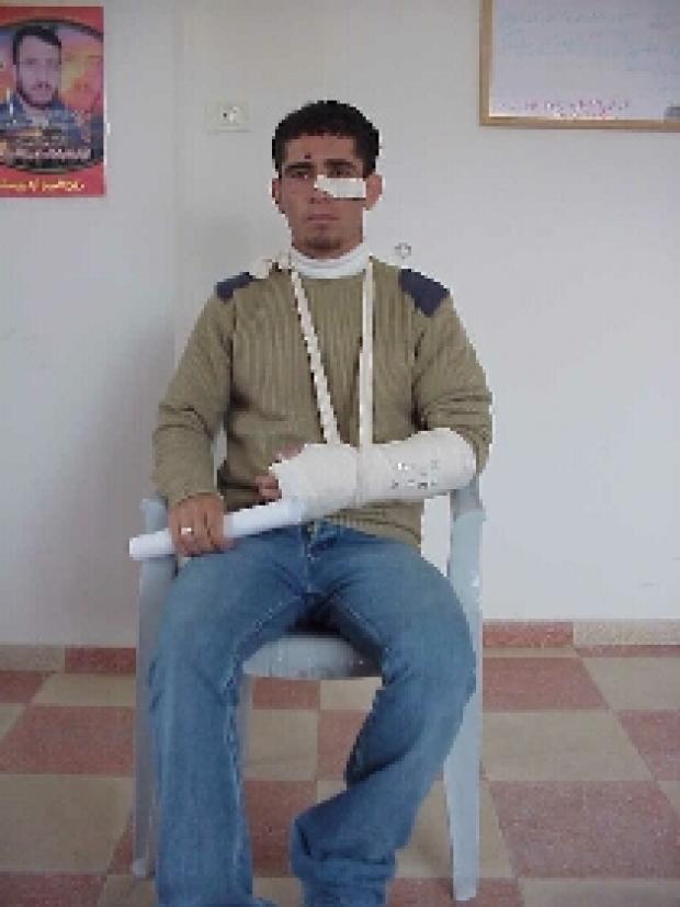 <p>[4082] 8  Jihad Halahleh, one of five Palestinian workers beaten by Border Police Officers in East Jerusalem on 8 February 2004.</p><p>Photo credit: Musa Abu Hashhash, B'Tselem</p>